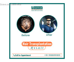 Finest Centre For Hair Transplant in Ludhiana